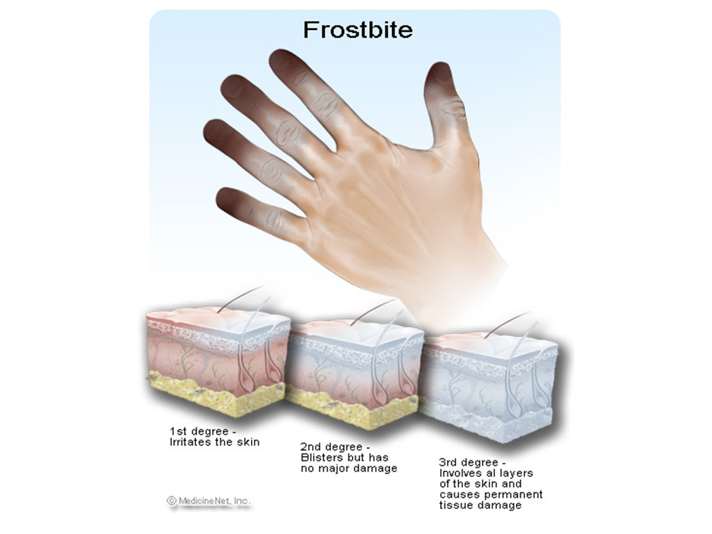 Degrees of Frostbite