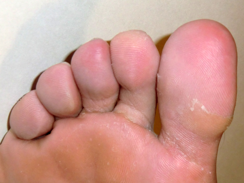 Healing Frostbite - Right Foot (Day 33)